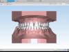 نرم افزار ماسترو دنتال Maestro 3D Dental Studio دندانپزشکی دندان ایمپلنت