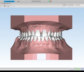 دانلود کرکنرم افزار ماسترو دنتال Maestro 3D Dental دندانپزشکی