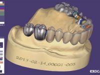 نرم افزار دندانپزشکی اگزو کد 2018 ExoCad Dental Cad  اگزوکد ایمپلنت