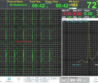 دانلود نرم افزار stressTest Treadmill CardioScan تست استرس قلب