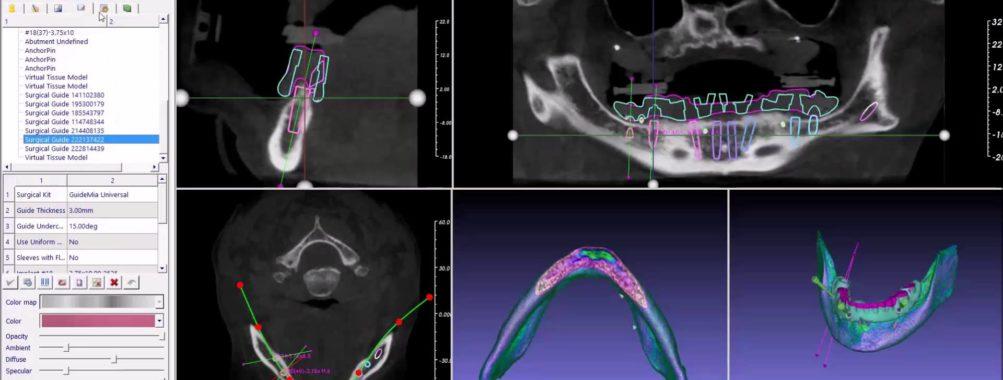 نرم افزار داندانپزشکی دنتال GuideMia CAD CAM Dental ویرایش STL DICOM