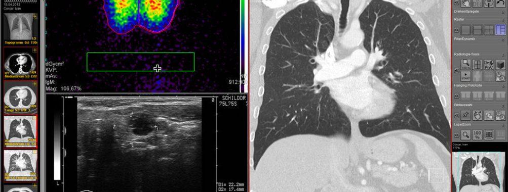دانلود کرک نرم افزار iQ-VIEW 3D Pro Image پردازش تصویر MRI CT